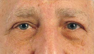 after_blepharoplasty-copy