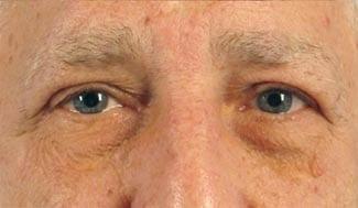 After Blepharoplasty