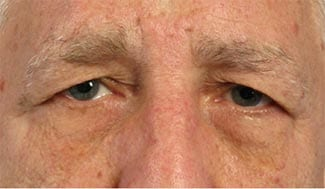 before_blepharoplasty