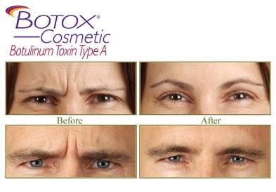 Botox & Restylane – Cabarrus Eye Center