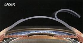 lasik-flap